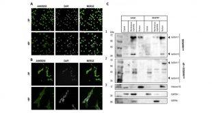 Descubren el primer gen involucrado en la aparición de esclerosis múltiple